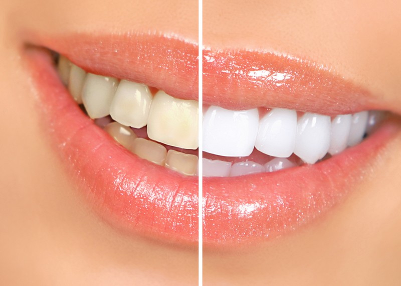 teeth whitening services Shreveport, LA
